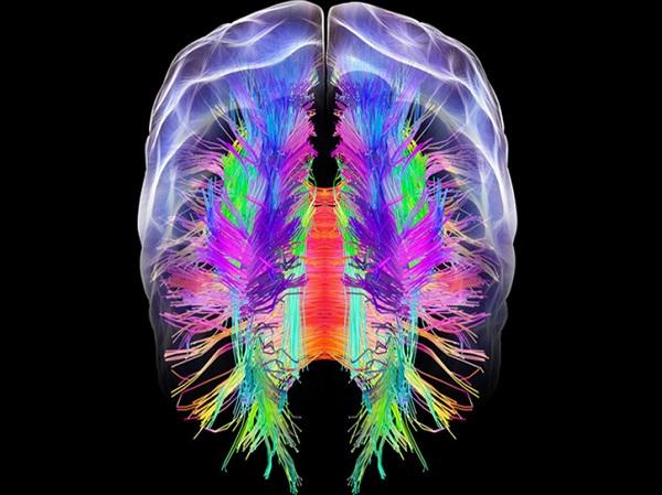 La anatomía del cerebro sería diferente en las personas con riesgo ...