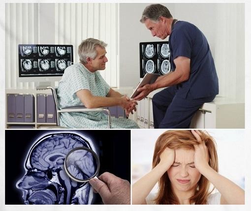 Amnesia Causas Síntomas Tratamiento Y Diagnóstico