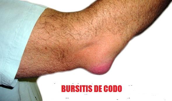 Bursitis: qué es, síntomas, causas, tratamientos y más